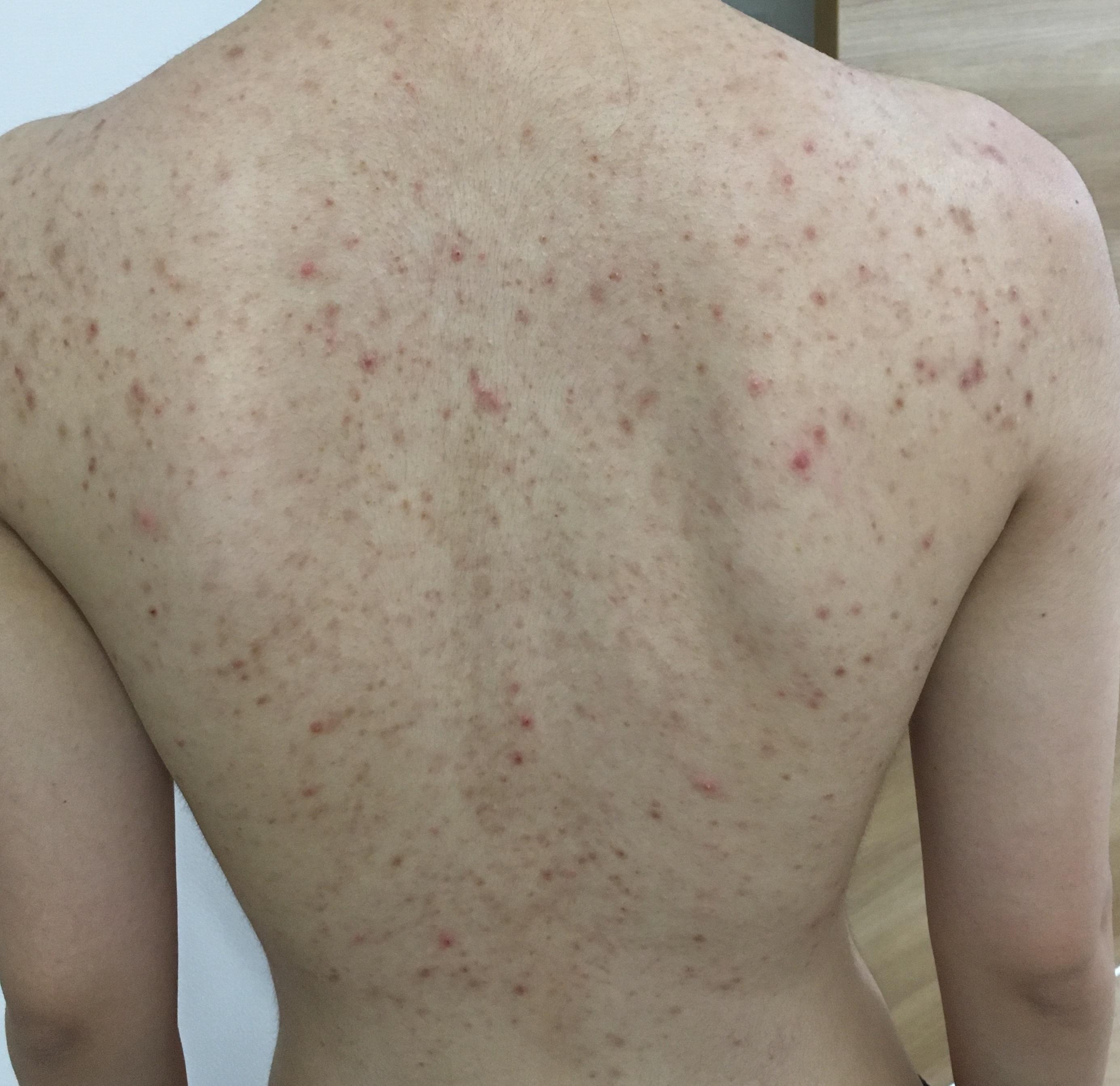 ひどい 背中 ニキビ 背中ニキビを市販薬で治すことはできる?ひどい場合は皮膚科で治療が必要? 株式会社nanairo【ナナイロ】