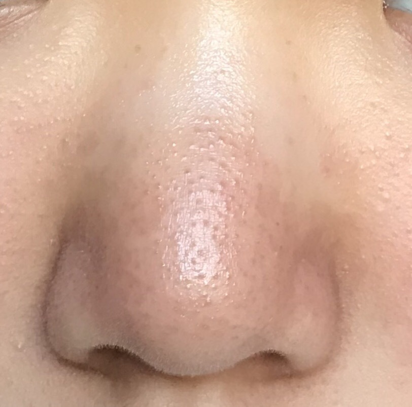 閉じる 鼻 毛穴