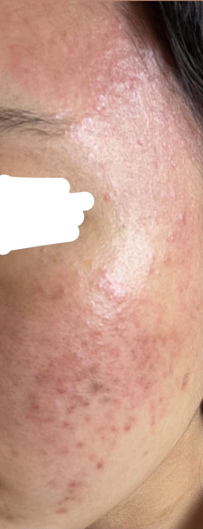 皮膚 炎 漏 完治 脂 性