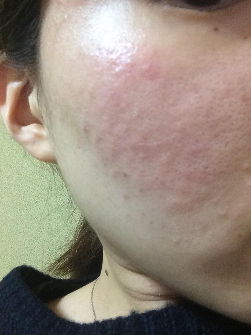 漏 治し 脂 性 方 炎 皮膚