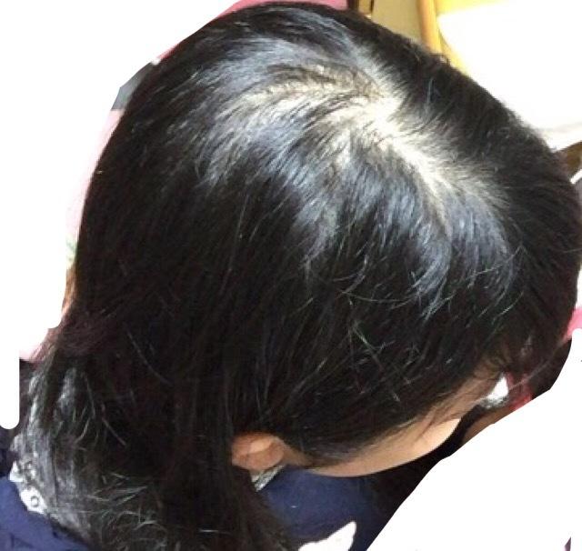頭頂部 薄毛